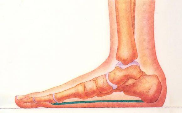 صافی کف پا و روش های درمان