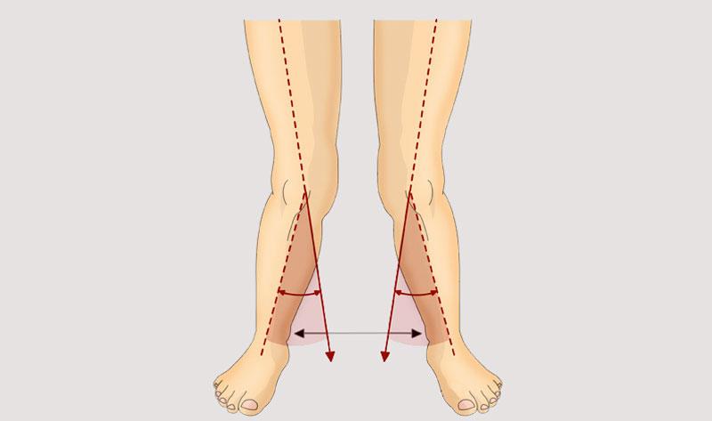 درمان زانو و پای ضربدری بدون عمل جراحی(حرکات اصلاحی و ورزش)