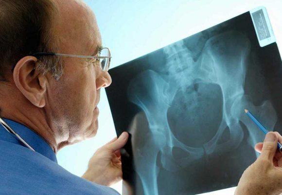 التهاب لگن چیست؟